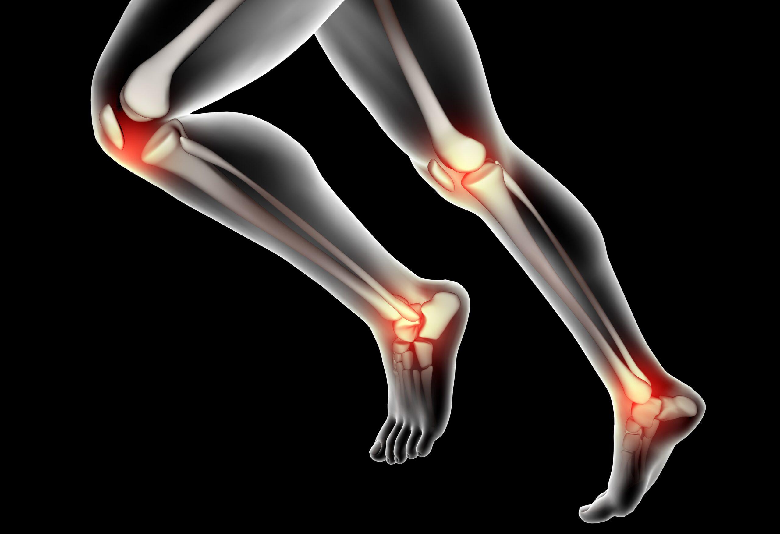 Best Total Knee Replacement Surgeon in Kothrud & Bavdhan