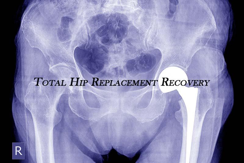 Total Hip Replacement Surgeon in Kothrud