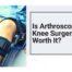 arthroscopy surgeon in Kothrud and bavdhan