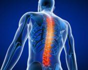 Back Pain Treatment in Kothrud and Bavdhan