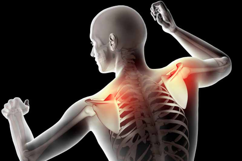 Best Shoulder Pain Treatment in Kothrud & Bavdhan